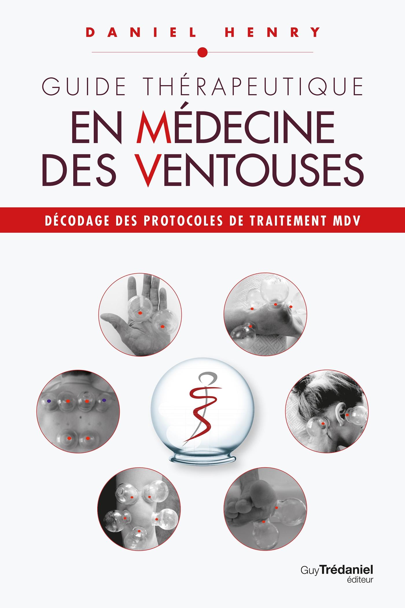 Guide thérapeutique en médecine des ventouses