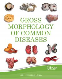 Gross Morphology of Common Diseases